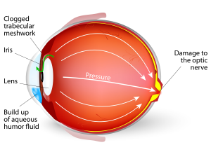glaucoma-300x207